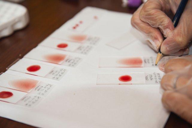 Des étalements sur lames sont effectués sur place puis acheminés au laboratoire de parasitologie du CHAR pour examen microscopique du paludisme